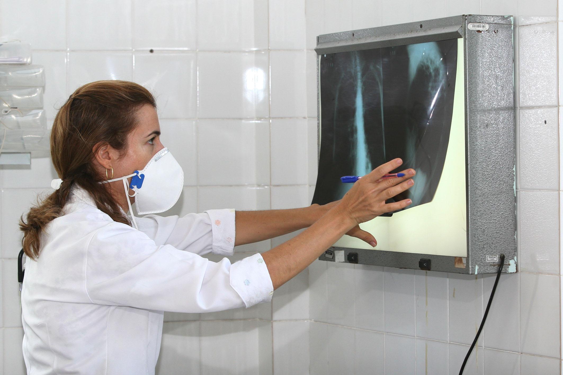 Tuberculose volta a crescer no Brasil e exige atenção